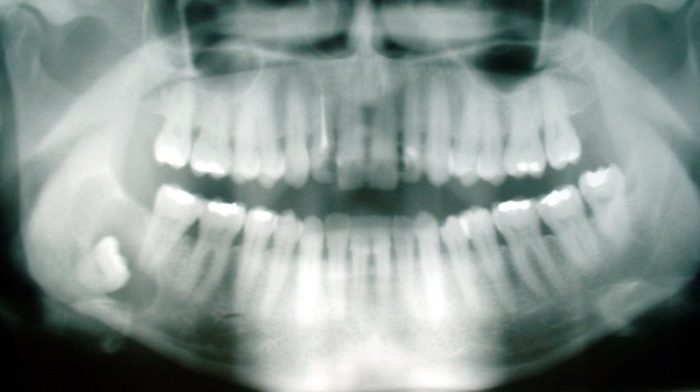 Full-mouth X-ray with impacted wisdom tooth