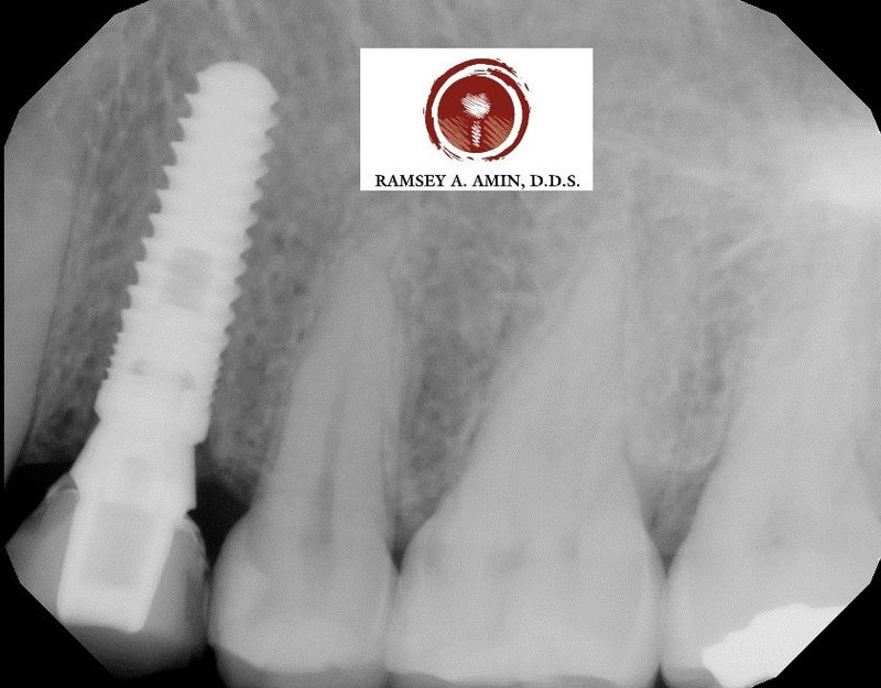 dental implant by Dr. Ramsey A. Amin