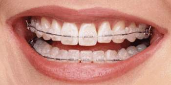 braces are common for straight teeth