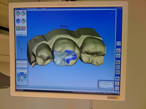A Teeth Scan Using 3D Software