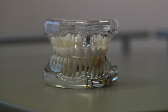 Dental Implants Dental Model