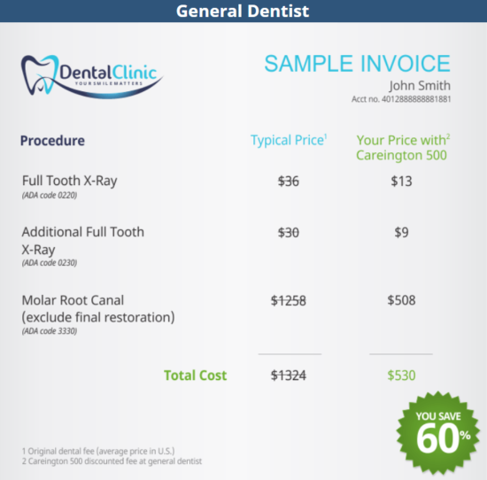 Average Root Canal Prices at the Dentist