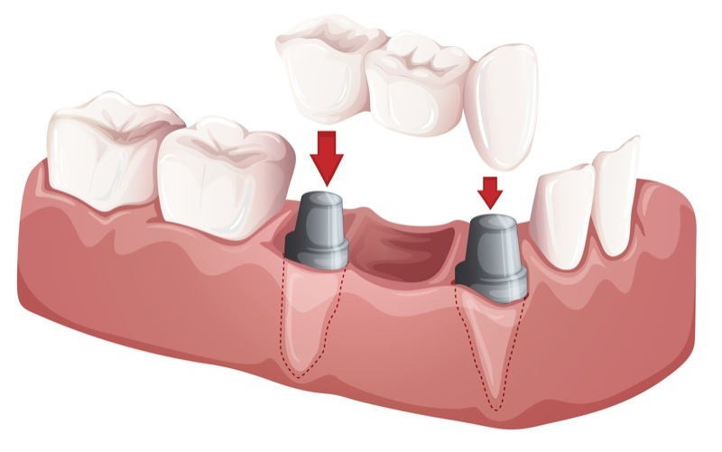 What to Know About Dental Bridges