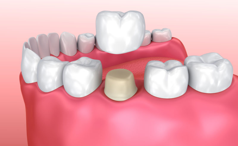 What to Know About Dental Crowns