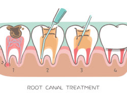 What to Know About Root Canals
