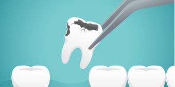 What to Know About Tooth Extractions